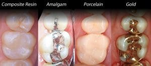 Dental Fillings and restorations here in Sydney
