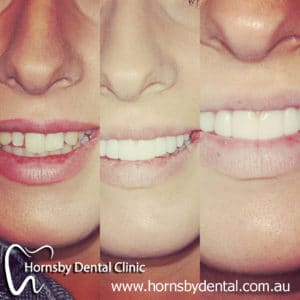 We have the best Orthodontist in Hornsby.