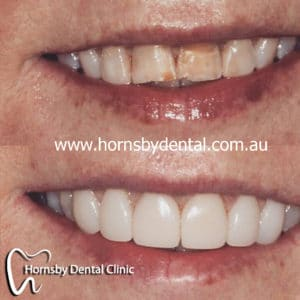 We are the best dentistry in Hornsby for dental veneers.