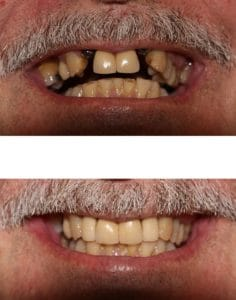 The best dentistry for dental implants in Hornsby.