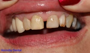 Patient patient presents with old anterior veneers that have been breaking down and unaesthetic proportions.