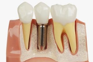 Dental Implants here in Sydney