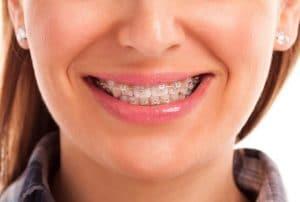 Orthodontics in Sydney