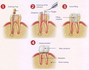 Root Canal Treatment in Sydney