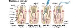 Root Canal Therapy in Sydney