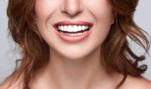 dental veneers Sydney