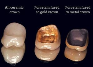 Types of dental crowns here in our Sydney clinic