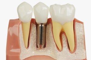 Dental Implants here in Sydney